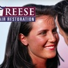 85% Off at Reese Hair Restoration