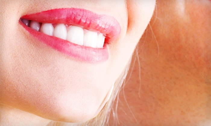 J. Bert Johnson, DDS - Tulsa: Dental Cleaning Package with Exam and X-rays or Whitening Trays at J. Bert Johnson, DDS ($450 Value)