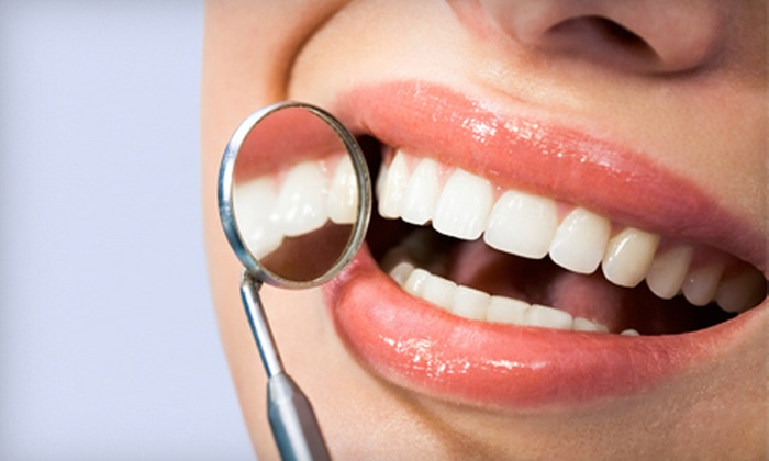 Dental Fine Arts - Brookvale: Dental Exam with X-rays and Cleaning, or a 30-Minute Whitening Treatment at Dental Fine Arts in Fremont (Up to 83% Off)