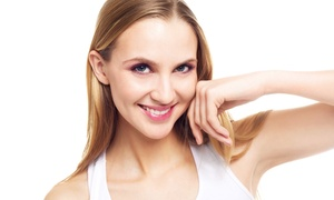 Skin Perfect Brothers: Two, Four, or Six IPL Photofacials at Skin Perfect Brothers (Up to 80% Off)