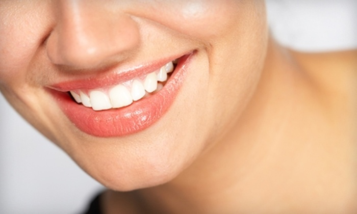 SmilePlus Dentistry - Fremont: $99 for a Dental Exam, X-rays, Cleaning, and Take-Home Whitening Kit at Smile Plus Dentistry in Fremont (Up to $426 Value)