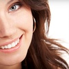 63% Off Teeth Whitening in Canton