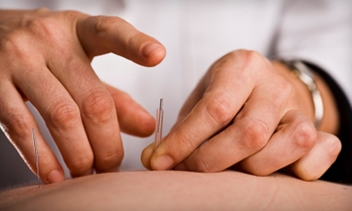 Mission Wellness  - Mission: $60 for Two 60-Minute Acupuncture Sessions and Wellness Consultation at Mission Wellness ($150 Value)