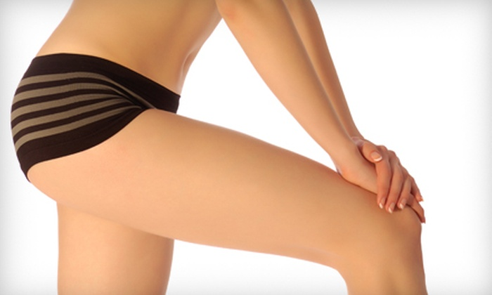 Bodytrends, the ElectroSpa - Multiple Locations: Body-Contouring or Laser Treatments at Bodytrends, the ElectroSpa