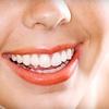 70% Off Teeth Whitening in Miami Beach