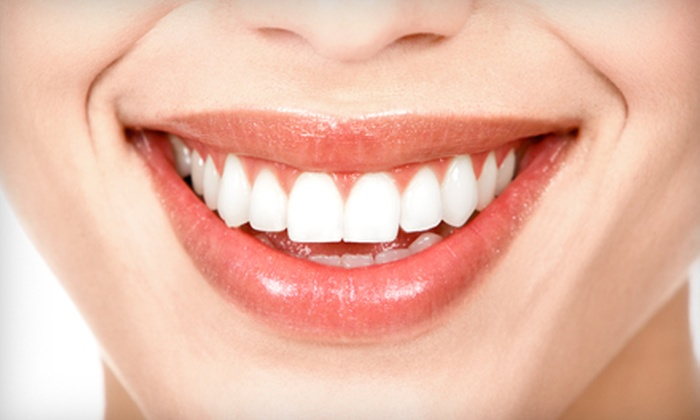 Joseph A. Favia Dental Practice - Arlington Heights: $149 for a BriteSmile In-Office Teeth-Whitening Treatment at Joseph A. Favia Dental Practice in Arlington Heights ($500 Value)
