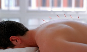 Portland City Acupuncture: An Acupuncture Treatment and an Initial Consultation at Portland City Acupuncture (70% Off)