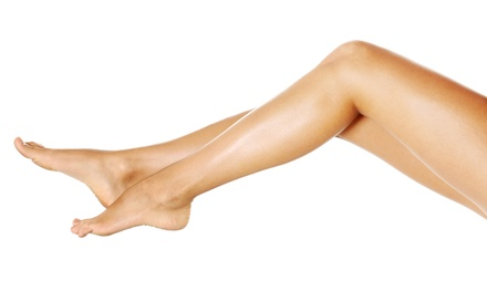 Four or Eight Spider-Vein Treatments at The Natural Place (80% Off)
