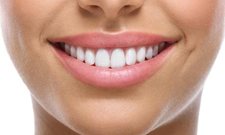 Limpieza bucal con ultrasonidos por 12,95 € y con 1 o 2 sesiones de blanqueamiento dental Led desde 49,95 €