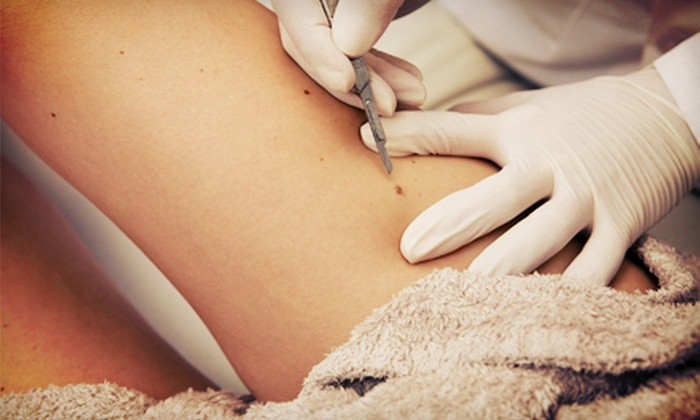 Dr. K's Med Spa and Indian Shores Clinic - Multiple Locations: $250 for Removal of Three Moles at Dr. K's Med Spa and Indian Shores Clinic ($750 Value)