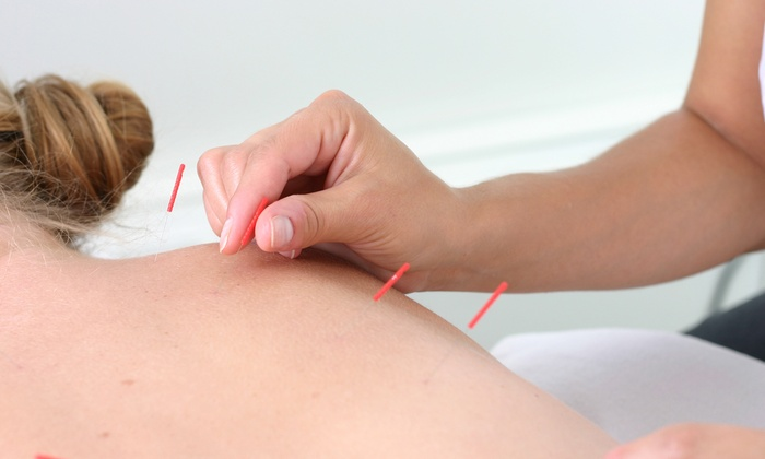 Yuan's Acupuncture & Herbs - New York: One or Three 45-Minute Acupuncture and Body System Analysis Sessions at Yuan's Acupuncture & Herbs (Up to 55% Off)