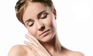 Bella by Alethea Medspa: Two, Four, or Six Diamond Microdermabrasion Treatments at Bella by Alethea Medspa (Up to 83% Off)