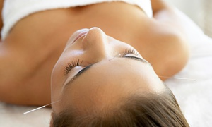 Acuhealing Clinics: One or Three Acupuncture Treatments at Acuhealing Clinics (Up to 67% Off)