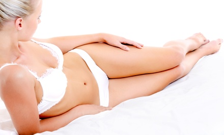 Six Laser Hair-Removal Treatments at Escape Medical Spa (Up to 92% Off). Three Options Available.