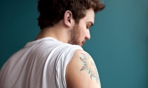 Cosmetic & Laser Surgery Center: Three Tattoo-Removal Treatments at Cosmetic & Laser Surgery Center (Up to 67% Off). Three Options Available.