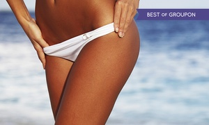 West End Beauty Clinic: Waxing: Brazilian or Hollywood (from £10) Plus Underarms (from £14) at West End Beauty Clinic (Up to 72% Off)