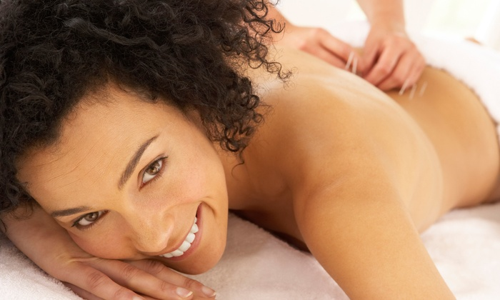 Club 24 Spa - Eldridge - West Oaks: Pain and Stress Consultation and Acupuncture Treatment with Optional Massage at Club 24 Spa (58% Off)