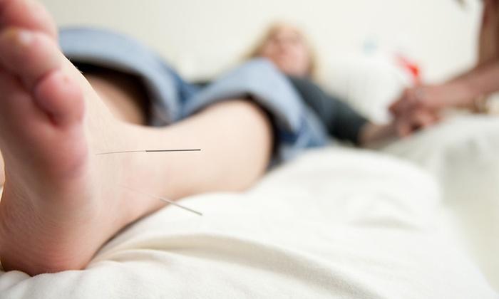 Corvallis Community Acupuncture - Chintimini: Three Acupuncture Treatments at Corvallis Community Acupuncture (45% Off)