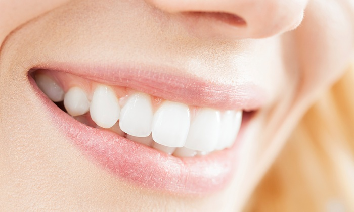 Commerce Dental - Montebello: Dental Care Packages with Optional Follow-Up Exam and Cleaning at Commerce Dental (Up to 86% Off)