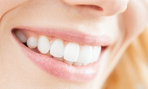 Commerce Dental: Dental Care Packages with Optional Follow-Up Exam and Cleaning at Commerce Dental (Up to 84% Off)