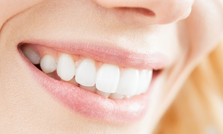 Scale, Clean and Polish or Laser Teeth Whitening with Topical Fluoride for One or Two at Boston Dental Center*