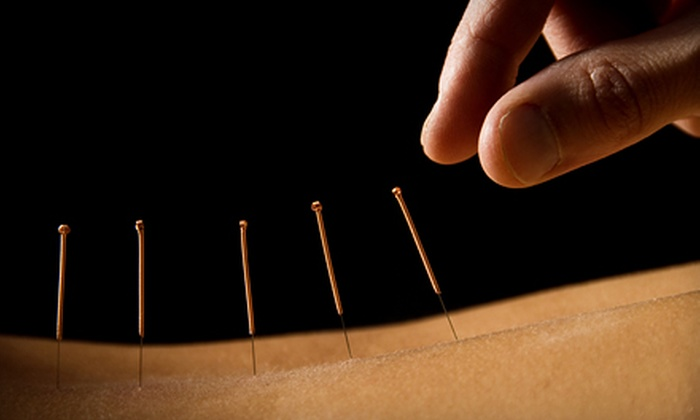 Wayne Family Acupuncture - Wayne: Acupuncture Treatments at Wayne Family Acupuncture (Up to 74% Off). Three Options Available.