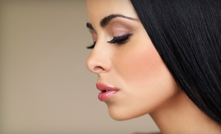 Reviv Med Spa: 20 Units of Botox - Reviv Med Spa in Millbrae