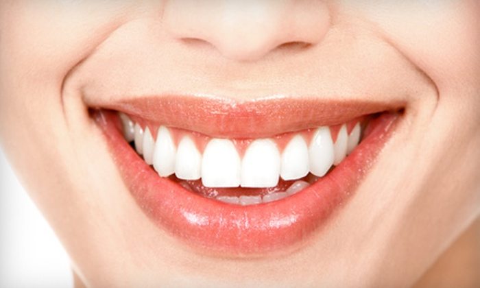 Sage Dental - Manasquan: Exam, Cleaning & X-Rays or Take-Home Whitening Treatment at Sage Dental in Manasquan