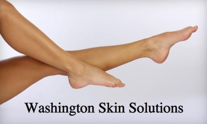 Washington Skin Solutions - Washington: $99 for Two Non-Invasive Spider Vein Treatments at Washington Skin Solutions in Washington ($200 Value)