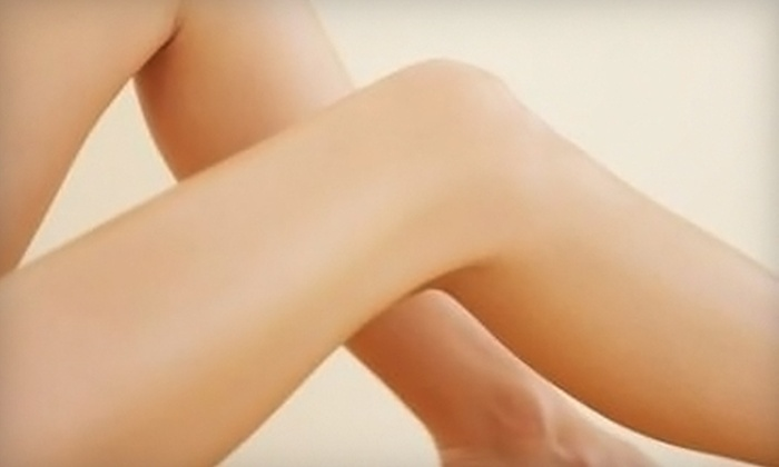 South Valley Vein Center - Downtown Bakersfield: $125 for a Half-Hour Spider-Vein Treatment at South Valley Vein Center ($250 Value)
