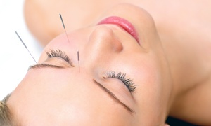 Juline's Acupuncture Studio: One or Four Facial Rejuvenation Acupuncture Treatments at   Juline's Acupuncture Studio (Up to 61% Off)