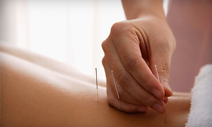 Chinese Acupuncture & Herb Center - Downtown - Penn Quarter - Chinatown: Acupuncture Treatment or Acupuncture, Acupressure, and Cupping at Chinese Acupuncture & Herb Center (Up to 68% Off)