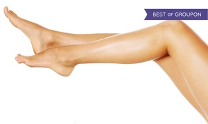 Vein Associates of Edina: $99 for Two Sclerotherapy Spider-Vein Treatments at Vein Associates of Edina ($600 Value)