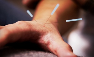 Southpoint Community Acupuncture: Two or Four Community Acupuncture Sessions at Southpoint Community Acupuncture (Up to 72% Off)