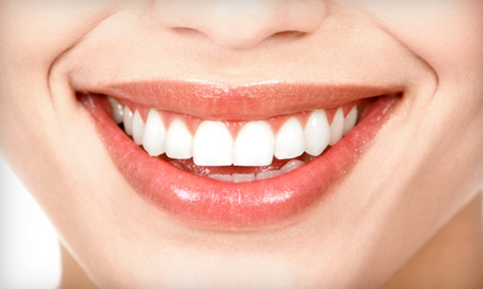 Sandra Vargus Dental Care - Multiple Locations: $129 for an In-Office Artiste Teeth-Whitening Treatment from Sandra Vargas Dental Care ($499 Value)
