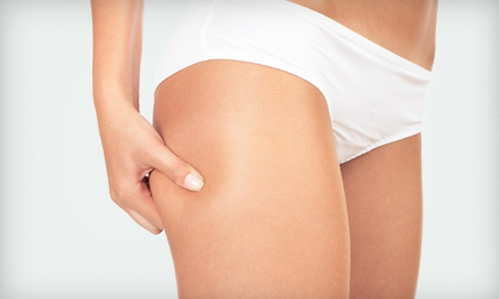 Naturally Well - Reno: One or Three 60-Minute Anti-Cellulite Body Wraps at Naturally Well (Up to 58% Off)