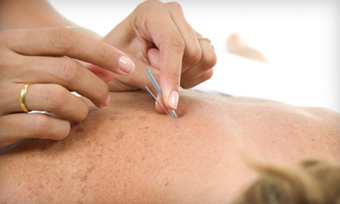Leonard Chiropractic - Fairview Park: One or Three Acupuncture Treatments at Leonard Chiropractic in Fairview Park (Up to 71% Off)