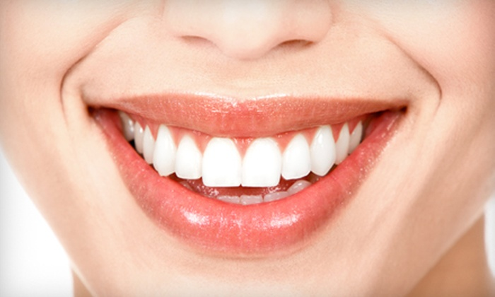 Laser Light & Sound - Multiple Locations: $79 for an In-Office Teeth Whitening at Laser Light & Sound ($222.88 Value)