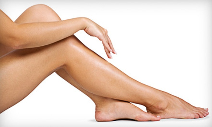 Northwest Aesthetics - Seattle: $129 for Two Palm-Sized Spider-Vein Removal Treatments at Northwest Aesthetics in Kirkland ($398 Value)