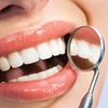 67% Off Zoom Teeth Whitening