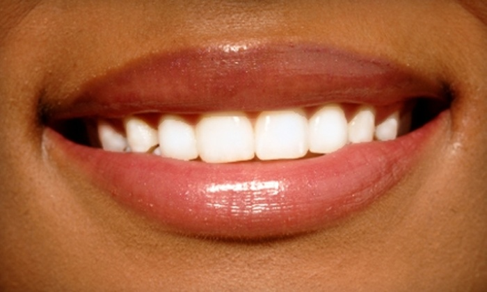 Del Mar Smiles - Solana Beach: $129 for a Zoom! Teeth-Whitening Session at Del Mar Smiles ($375 Value)