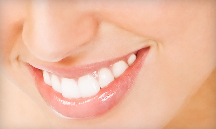 StarWhite, LLC: $32 for an Advanced At-Home Teeth-Whitening System from StarWhite, LLC (a $119.85 Value)