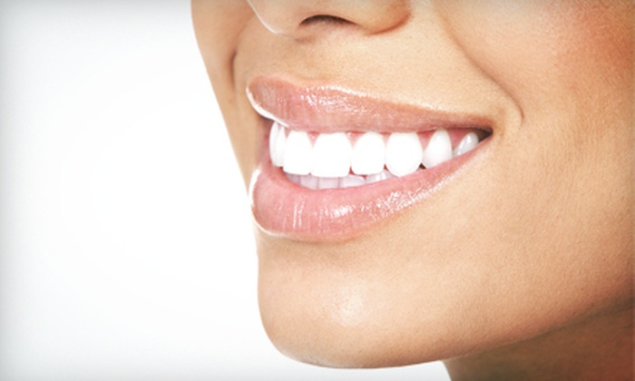 Cedar Point Dentistry - Northeast Richfield: $149 for an Opalescence Boost Teeth-Whitening Treatment at Cedar Point Dentistry ($440 Value)