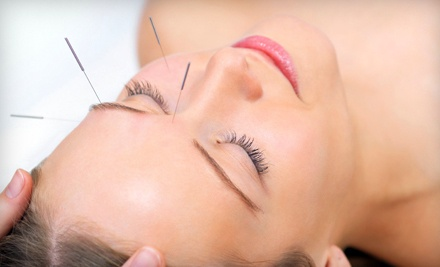 1 Laser Acupuncture Session with an Initial Consultation (a $250 value) - Sina Medical Group in Santa Ana