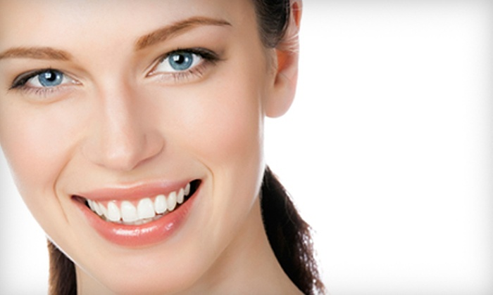 Desert Beauty Day Spa - Rio Rancho: One, Two, or Three Beaming White Teeth-Whitening Treatments at Desert Beauty Day Spa in Rio Rancho (Up to 56% Off)