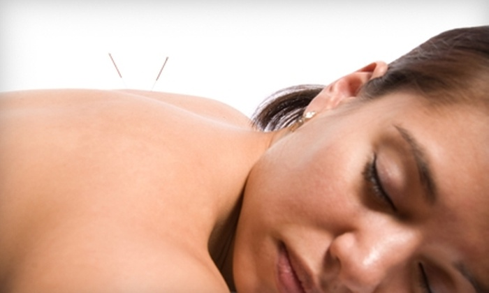 Pinecrest Wellness Center - Annandale: $60 for a One-Hour Acupuncture Treatment and a 30-Minute Consultation at Pinecrest Wellness Center in Annandale ($125 Value)