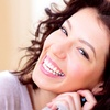 Up to 50% Clear Braces at Impressions Dental