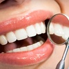 87% Off at Distinctive Smiles of Dublin
