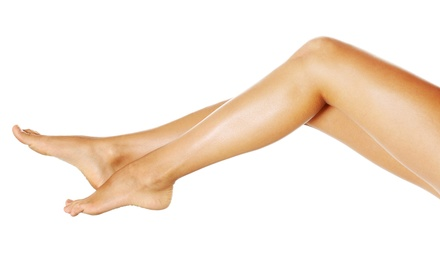 Two, Four, or Six Sclerotherapy Spider Vein-Removal Treatments at Dr. DePrince CosMedical (Up to 81% Off)