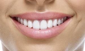 Ambulatorio Odontoiatrico S.O.: Visita odontoiatrica, pulizia denti, otturazione e sbiancamento all'Ambulatorio Odontoiatrico S.O. (sconto fino a 66%)
